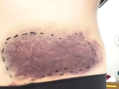 子宮筋腫摘出後の痣